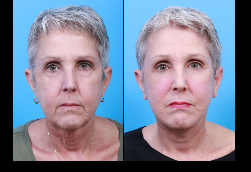 UCSF FPRS Deep Plane Facelift and Necklift: Front