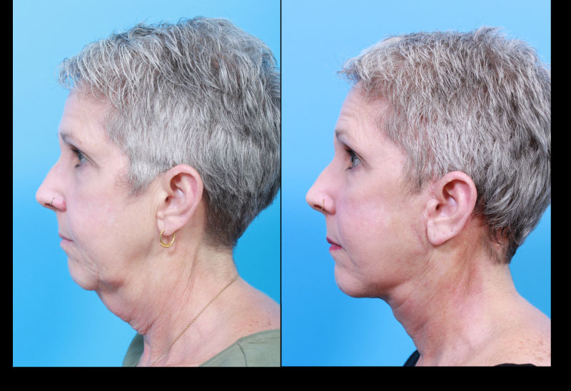 UCSF FPRS Deep Plane Facelift and Necklift: Profile