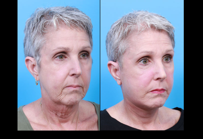 UCSF FPRS Deep Plane Facelift and Necklift