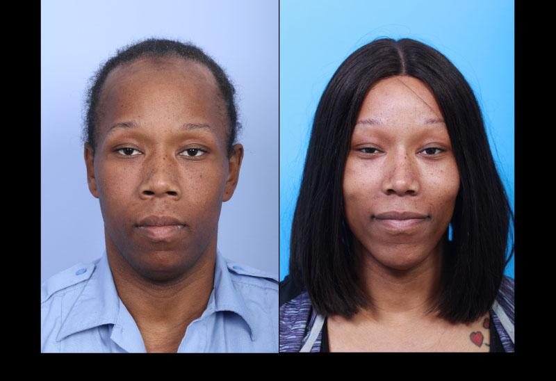 Facial feminisation surgery