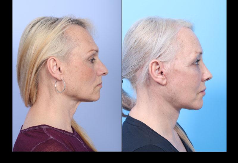 Facial Feminization Surgery (FFS) in San Francisco at UCSF