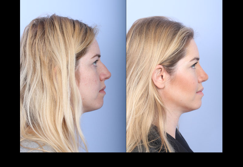 Rhinoplasty Case 2 Profile Left