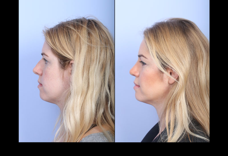 Rhinoplasty Case 2 Profile Right