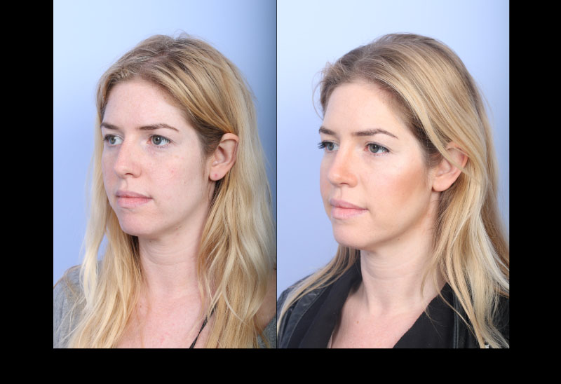 Rhinoplasty Case 2