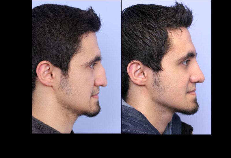 Rhinoplasty Case 4 Profile