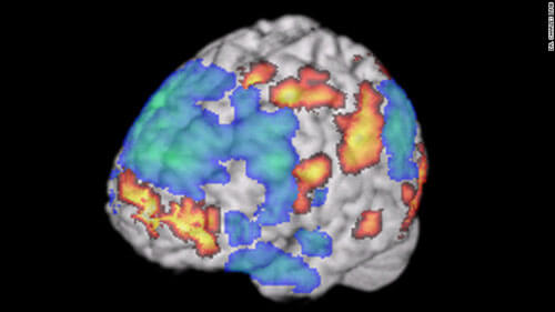 Dr. Charles Limb: Jazz Improv and Brain Creativity
